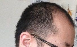 前頭部のハゲ