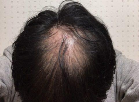 AGA治療16日目