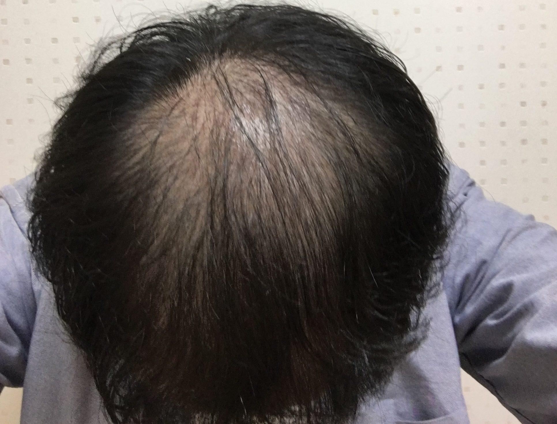 AGA治療1ヶ月