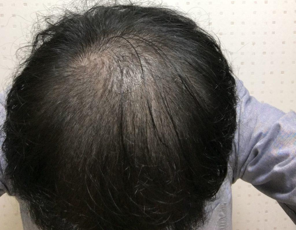 AGA治療1.5ヶ月