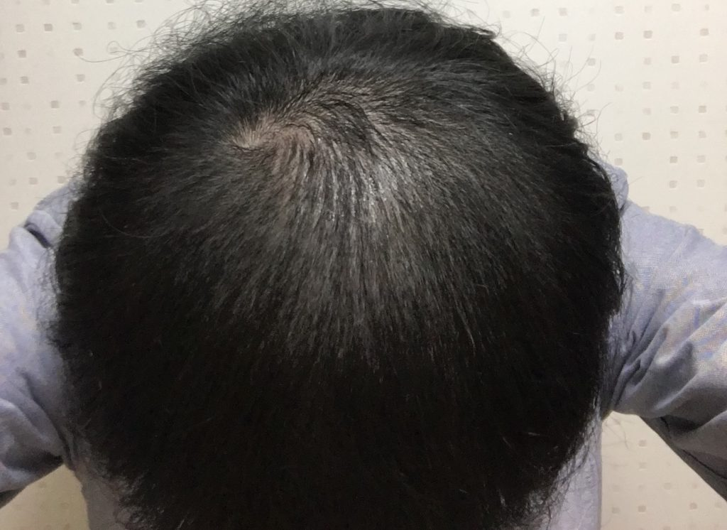 AGA治療2ヶ月