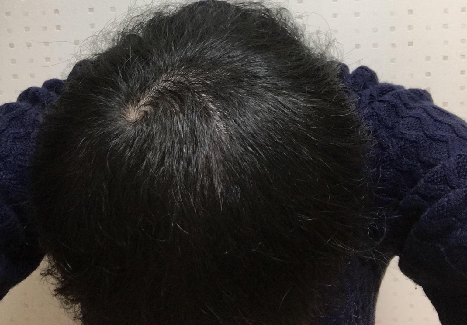 AGA治療2.5ヶ月